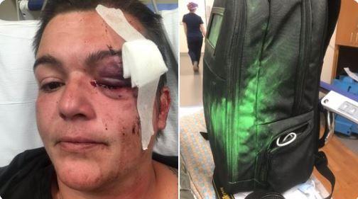 La fotógrafa Linda Tirado pierde un ojo en protestas por la muerte de George Floyd