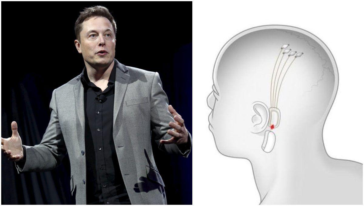 Elon Musk Chip
